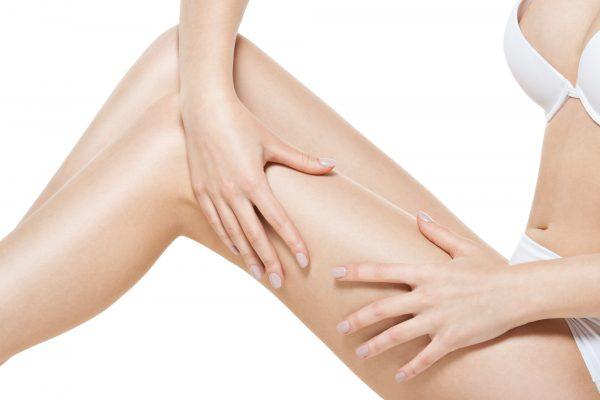 Woman squeezes cellulite skin on leg